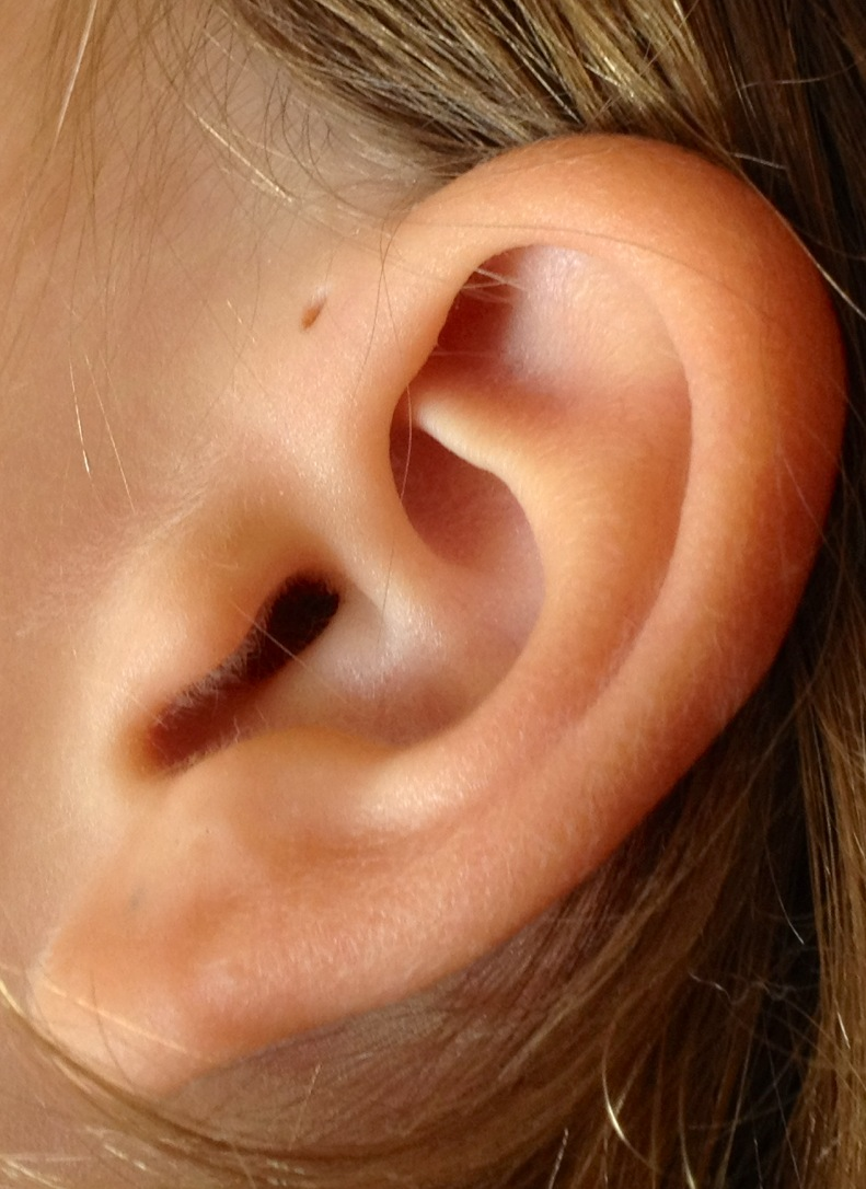 What are Pre-Auricular Cysts? - Isaac Namdar, MD